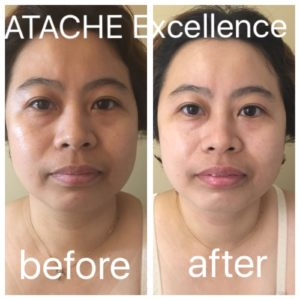 Facial Treatment Before and After
